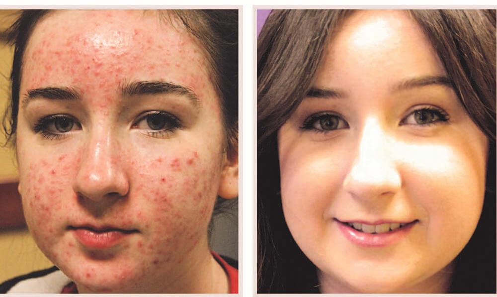 acne laser treatment